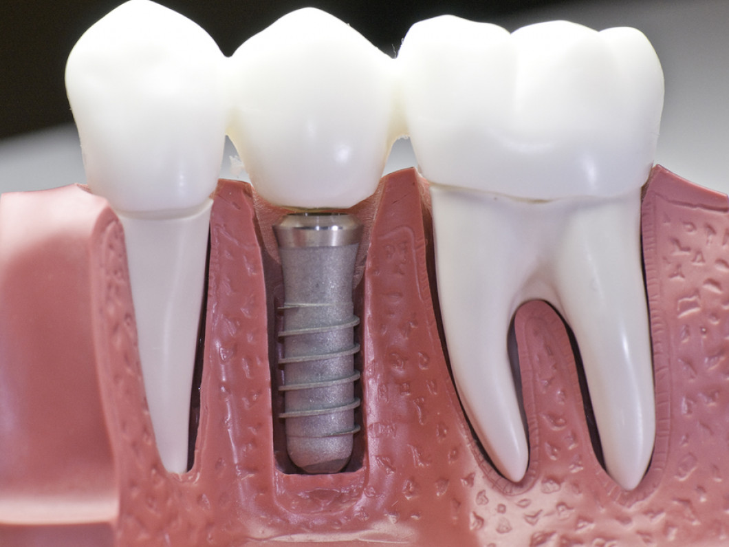What are dental implants like?